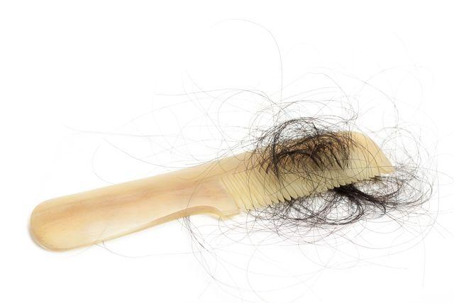 自毛植毛 そして植毛に挑戦