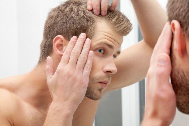 フィンジア 頭皮に湿疹やかぶれなどの異常がある人