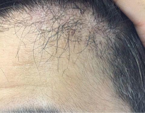 自毛植毛  2度目の植毛から約2カ月経過