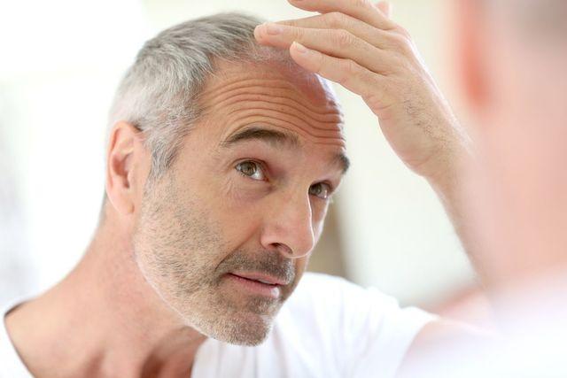 プロペシア アメリカの臨床試験で80%の人が発毛を実感