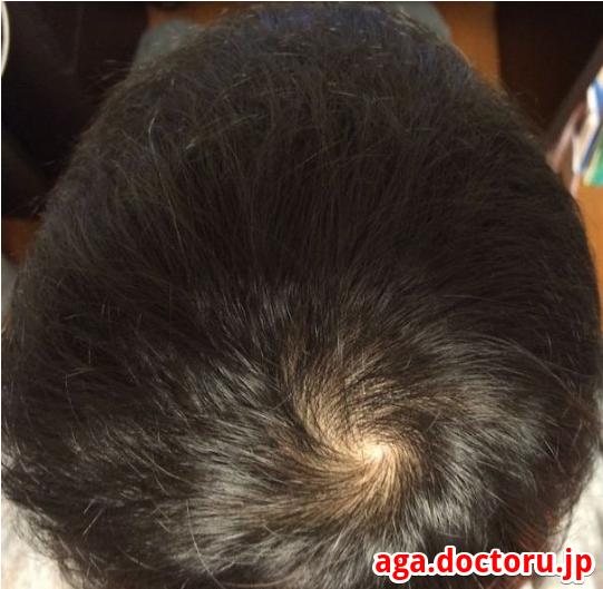 プロペシア 2ヶ月目の頭皮画像