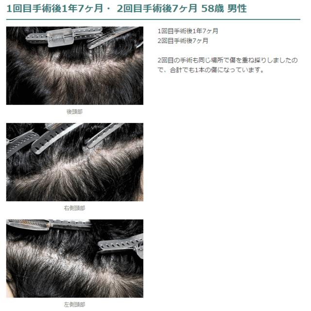 自毛植毛 縫合法の傷(FUT法)
