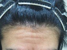 自毛植毛 【体験談あり】手術当日から手術後の効果の経過