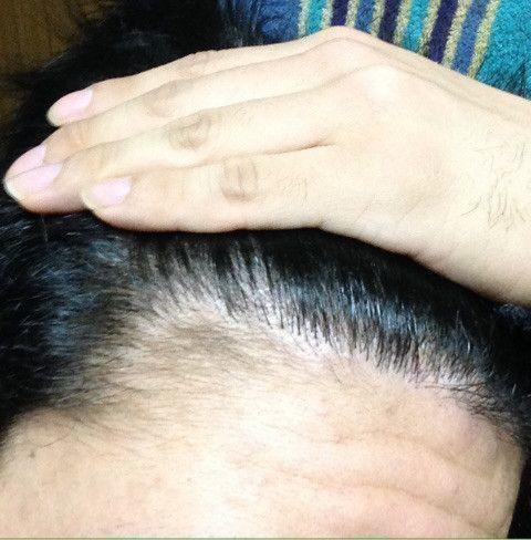 自毛植毛 6ヶ月〜12ヶ月経過