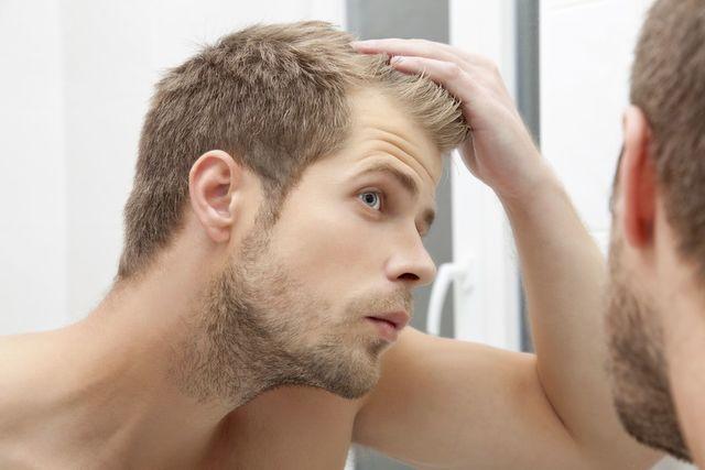 M字ハゲ(生え際前髪の薄毛) M字ハゲの原因