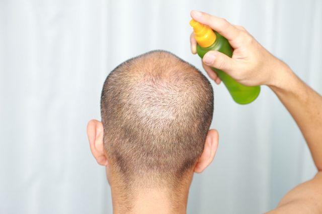育毛剤 頭皮の環境を良くする