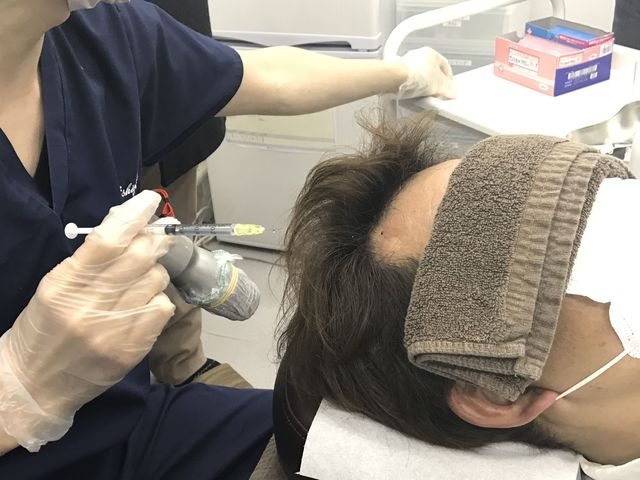 注射後は注射した位置に注射液がたまるのが見える