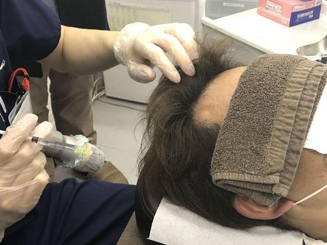 ミノキシジル 注射治療