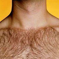 ミノキシジル その他の多毛症の事例