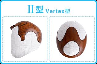 AGA若ハゲの原因 Ⅱ Vertex型