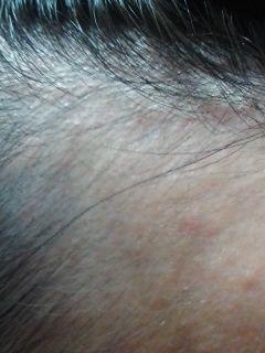 AGA治療の体験談 AGA治療108日目