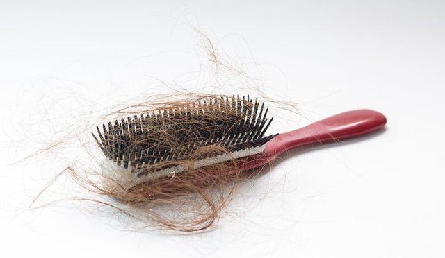 AGA治療の体験談 ③初期脱毛が怖い