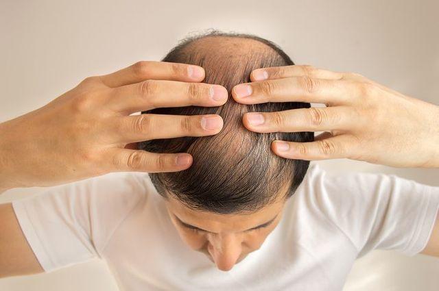 発毛剤 治療法その4:自毛植毛