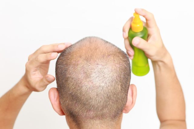 ミノキシジル 清潔な頭皮に使用する