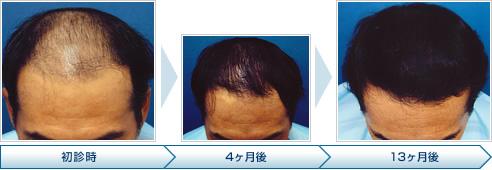 AGA専門クリニック (4)50代からの治療も可能