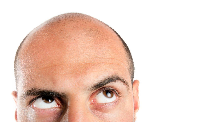 自毛植毛 自毛植毛は薄毛治療の最終手段