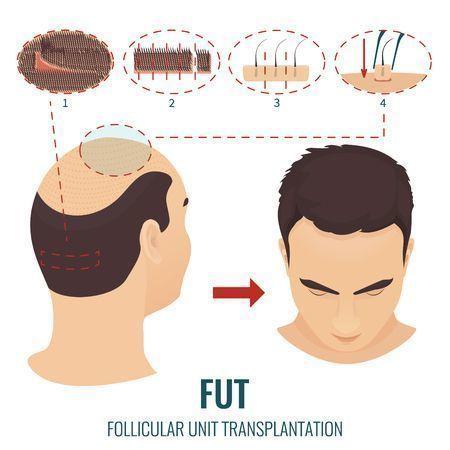 自毛植毛 FUT法のメリットデメリット