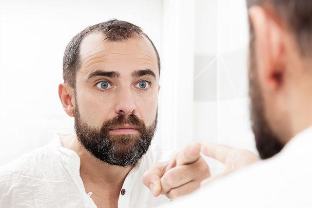 育毛剤 自分の薄毛の原因を把握することが重要