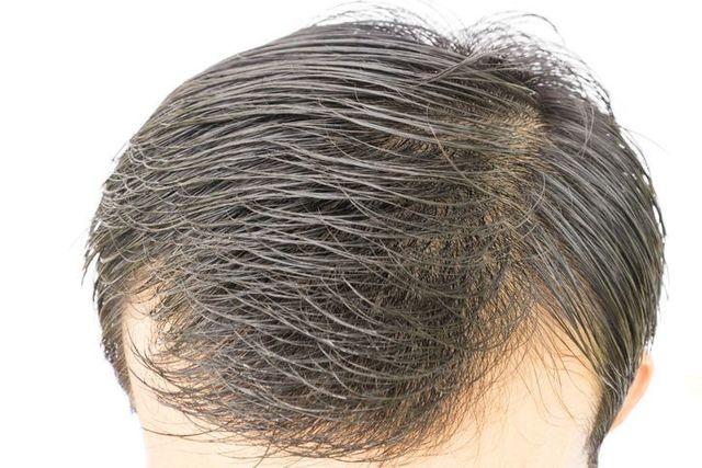 シャンプー 1日で抜ける髪の毛の平均的な本数