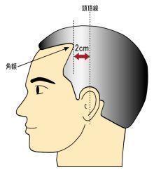 AGA若ハゲの原因 額の生え際から、頭頂線までの距離で判別