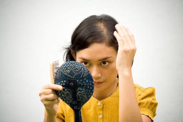 AGA若ハゲの原因 治るまでの髪型を工夫してみよう!