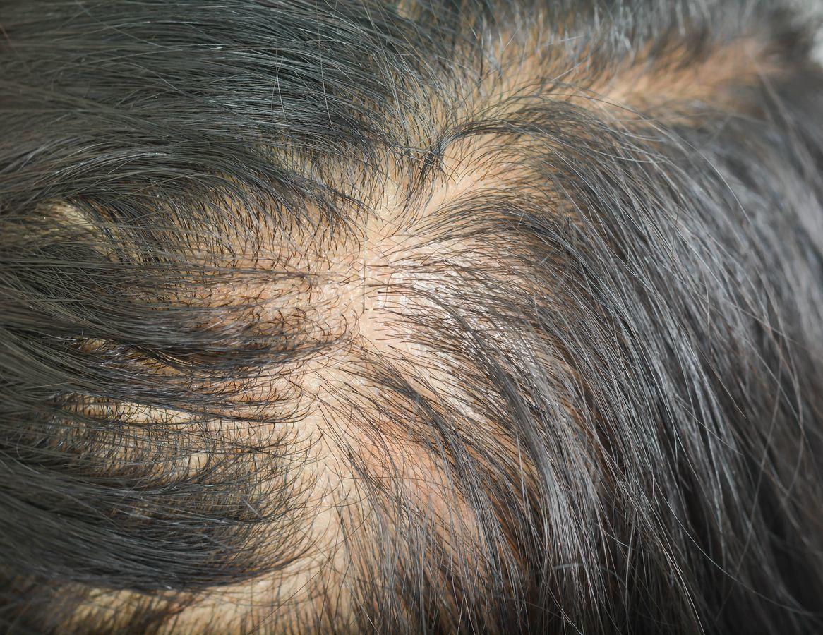 育毛剤 びまん性脱毛症