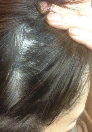 薄毛対策薄毛治療 女性の側頭部の薄毛を写真で解説