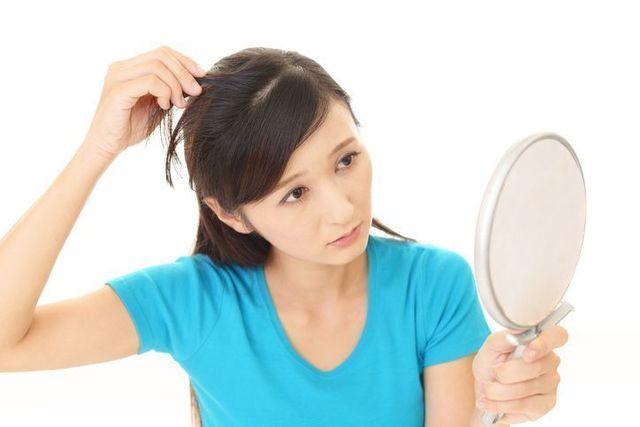 薄毛対策薄毛治療 側頭部ハゲで悩む女性の口コミ