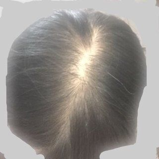 AGA若ハゲの原因 全体的に髪の毛が薄い