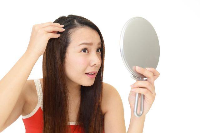 抜け毛 生え際や頭頂部の抜け毛が増える