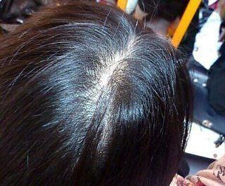 AGA若ハゲの原因 10代の女性でも薄毛になるの?