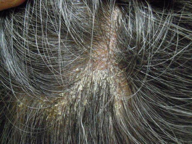 脂漏性脱毛症 脂漏性皮膚炎によって頭皮のかゆみやフケが発生する