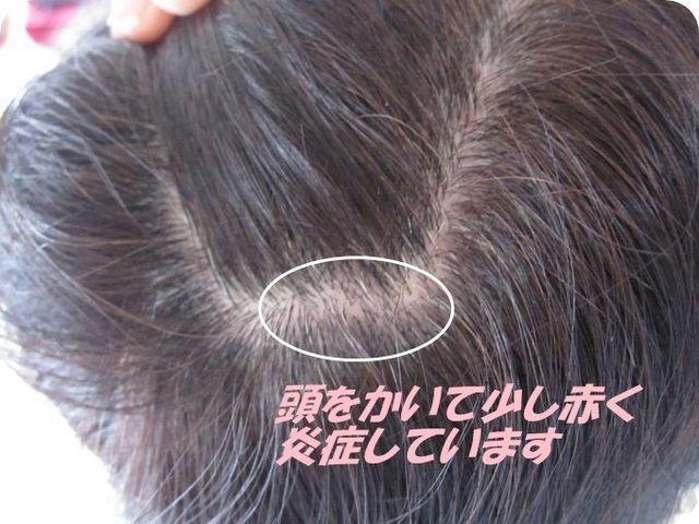 脂漏性脱毛症 毛穴が詰まり炎症が起こる