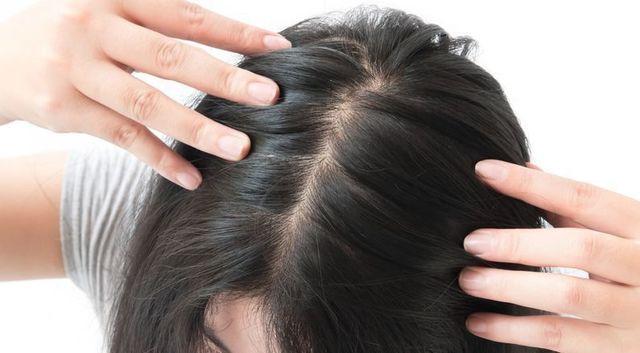 びまん性脱毛症 全体的に薄毛が進行する