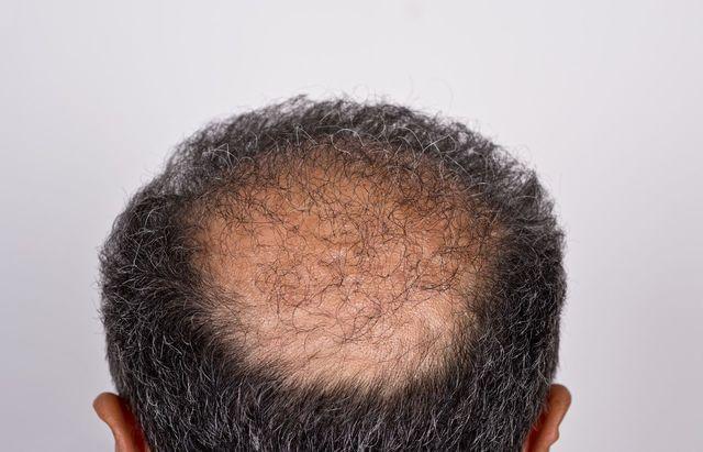 壮年性脱毛症 O字ハゲ(頭頂部)