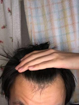 若年性脱毛症 生え際(M字はげ)