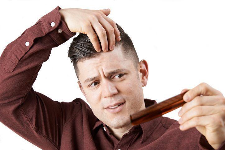 若年性脱毛症 植毛