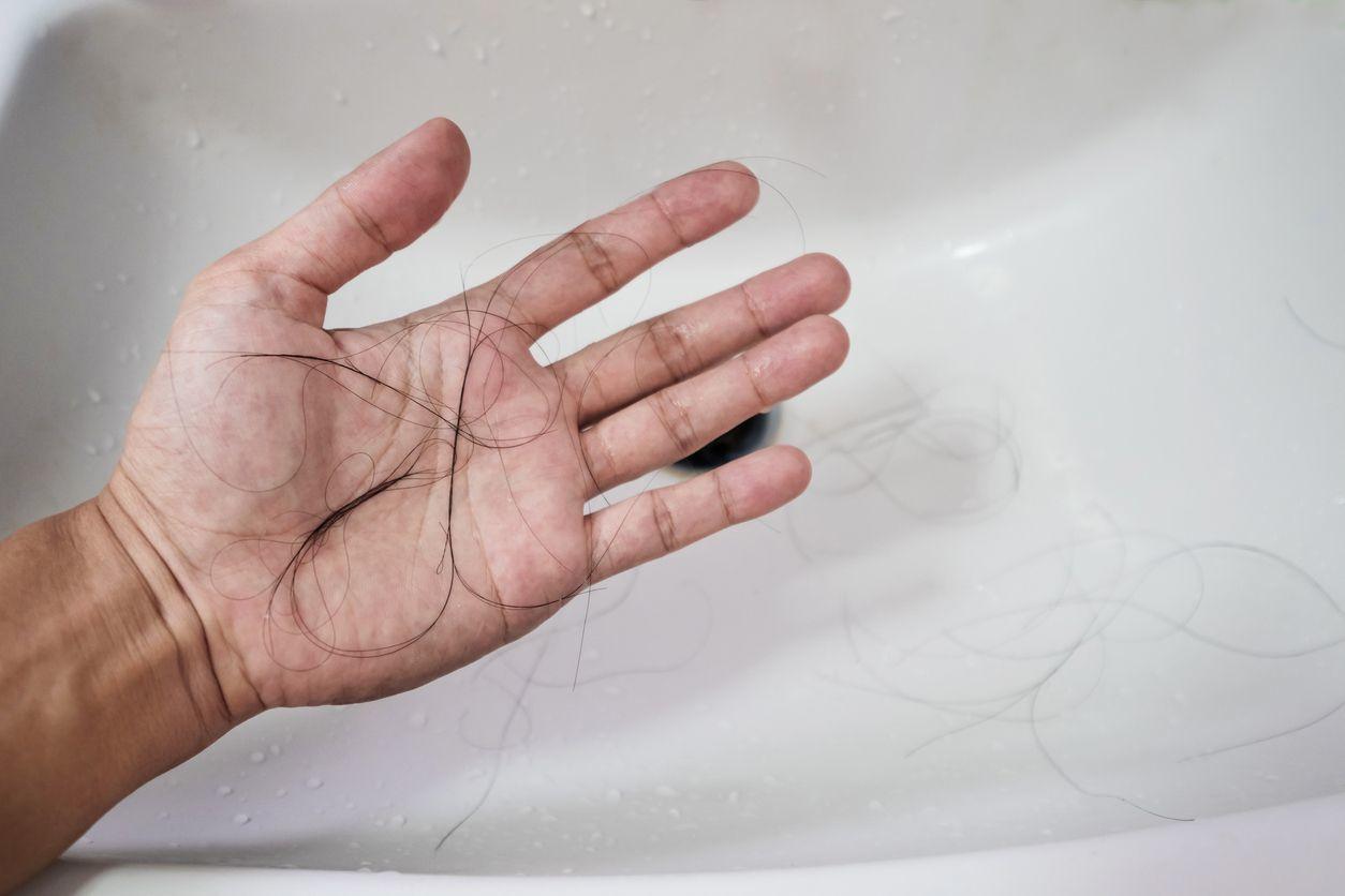薄毛対策薄毛治療 男性の場合はAGA