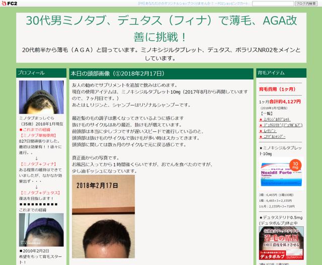 AGA若ハゲの治療 30代男ミノタブ、デュタス(フィナ)で薄毛、AGA改善に挑戦!