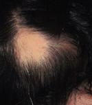 円形脱毛症 単発型円形脱毛症
