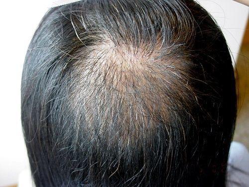 薄毛対策薄毛治療 写真で抜毛症の症状をチェック