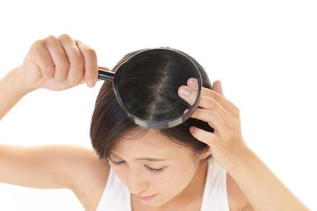 薄毛対策薄毛治療 60代以降の女性が薄毛になる3つの原因