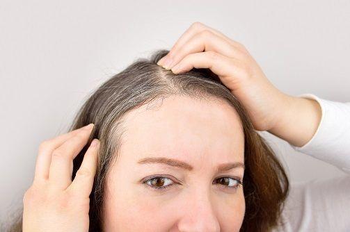 50代の薄毛 分け目頭頂部の薄毛が目立つ