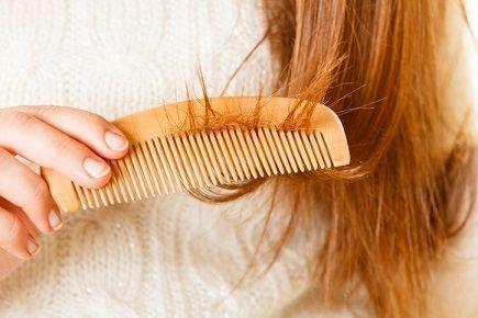 20代の薄毛 髪の毛のダメージ