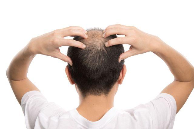 AGA若ハゲの原因 1型は側頭部後頭部に多い