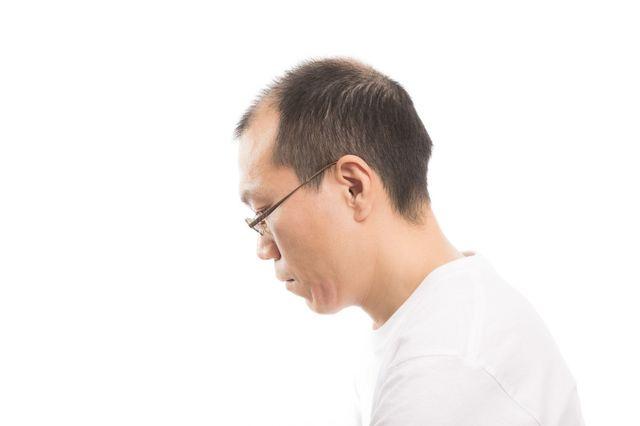 AGA若ハゲの原因 2型は前頭部頭頂部に多い