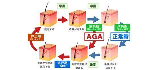AGA若ハゲの原因 Step2. ヘアサイクルを乱して抜け毛を引き起こす