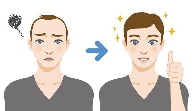初期脱毛 生え際の産毛はヘアサイクルが乱れ始めた証かも