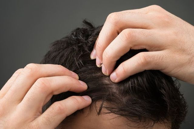髪型 髪のダメージと薄毛の関係