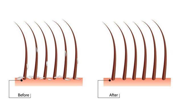 薄毛対策薄毛治療 皮膚科病院で受けられる治療法とは